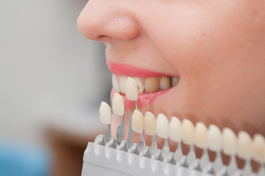 Get to Know More About Dental Veneers with These Answered FAQs!